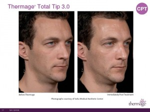Thermage Total Tip Sales Presentation-Page-17