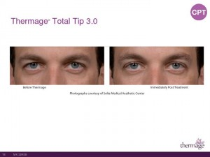 Thermage Total Tip Sales Presentation-Page-18