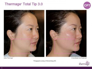 Thermage Total Tip Sales Presentation-Page-19