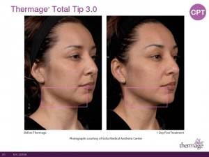 Thermage Total Tip Sales Presentation-Page-20