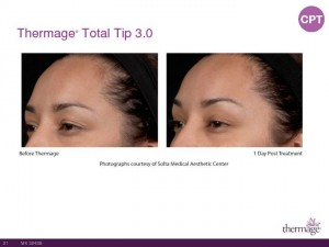 Thermage Total Tip Sales Presentation-Page-21
