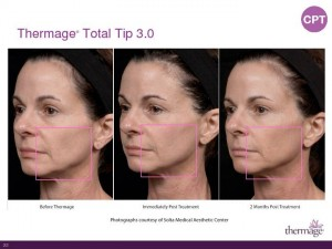 Thermage Total Tip Sales Presentation-Page-22