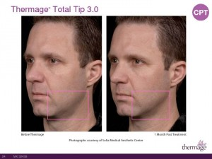 Thermage Total Tip Sales Presentation-Page-24